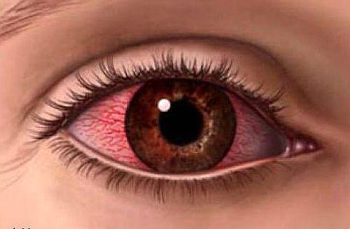 Гемофтальм: виды и способы лечения