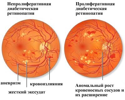 Диагностирование диабетической ретинопатии